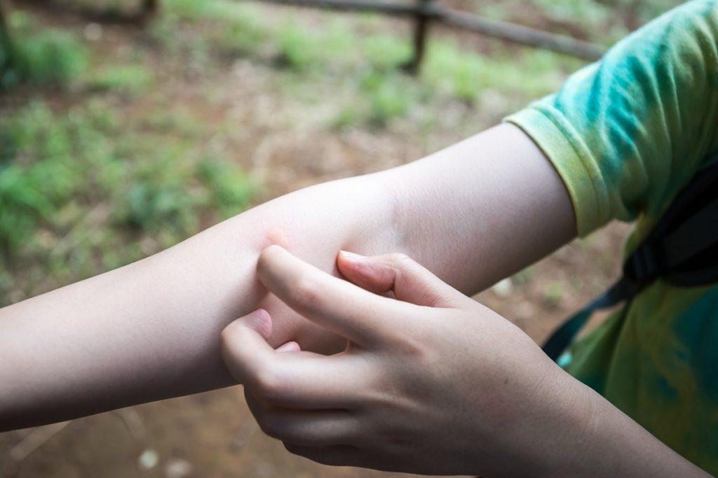かゆい 手の甲
